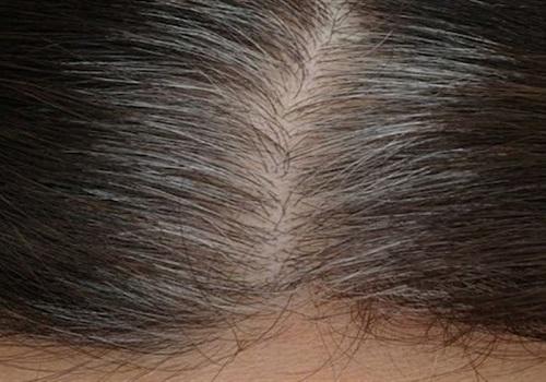 ما هي الأسباب الرئيسية لفقدان لون الشعر في سن مبكرة؟
