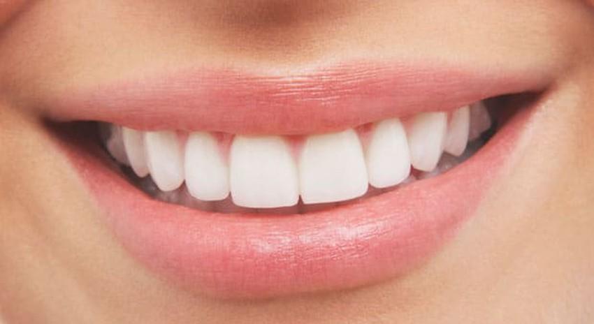وصفات طبيعية لتبييض أسنانك من مكونات مطبخك