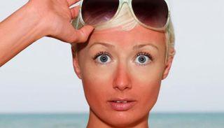 أسرع طريقة لعلاج حروق الشمس.. وأهم الوصفات الطبيعية بعد السباحة